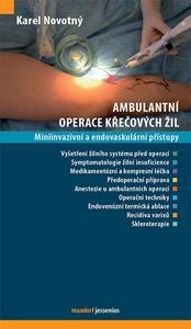 Obrázok Ambulantní operace křečových žil