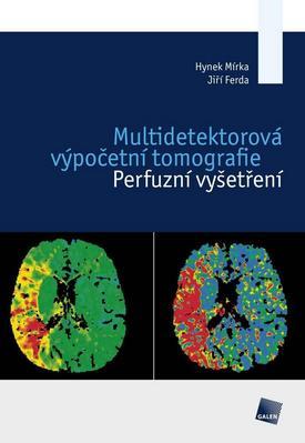 Obrázok Multidetektorová výpočetní tomografie