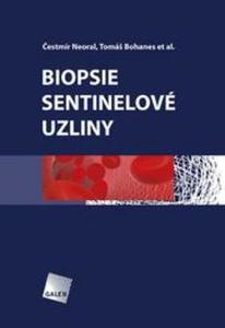 Obrázok Biopsie sentinelové uzliny