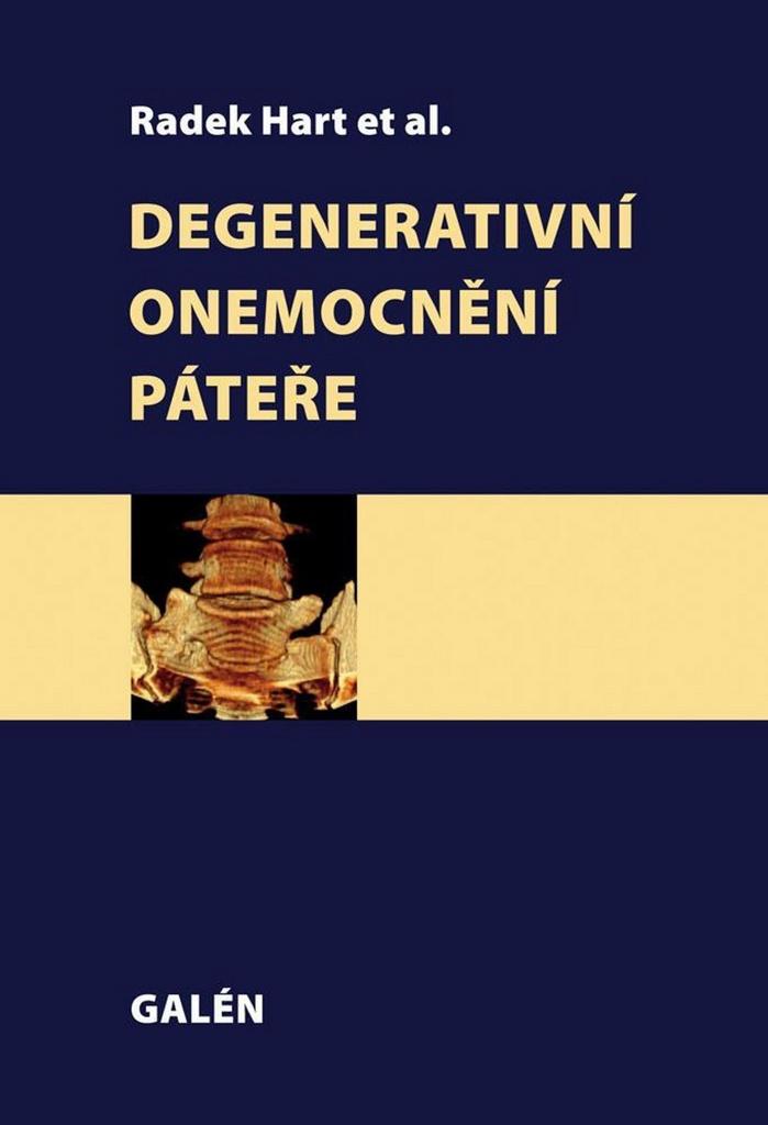 Degenerativní onemocnění páteře - Radek Hart