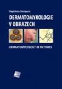 Obrázok Dermatomykologie v obrazech
