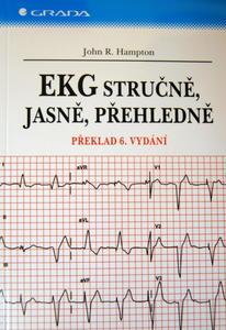 Obrázok EKG stručně, jasně, přehledně