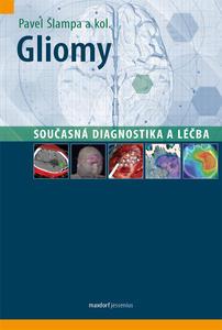 Obrázok Gliomy - současná diagnostika a léčba