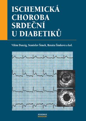 Obrázok Ischemická choroba srdeční