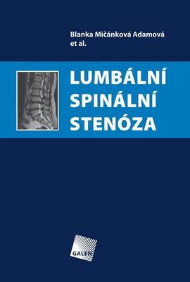 Obrázok Lumbální spinální stenóza