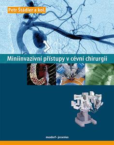 Obrázok Miniinvazivní přístupy v cévní chirurgií
