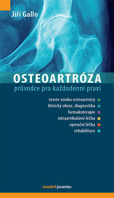 Obrázok Osteoartróza