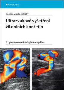 Obrázok Ultrazvukové vyšetření žil dolních končetin
