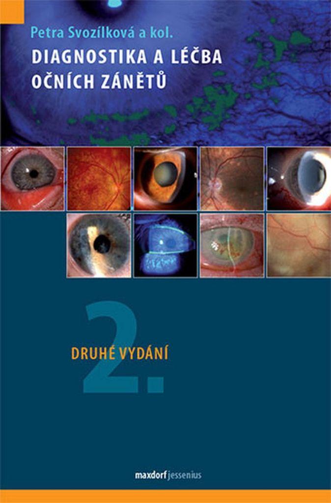 Diagnostika a léčba očních zánětů - doc. MUDr. Petra Svozílková Ph.D.