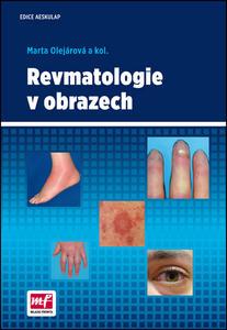 Obrázok Revmatologie v obrazech