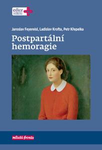 Obrázok Postpartální hemoragie