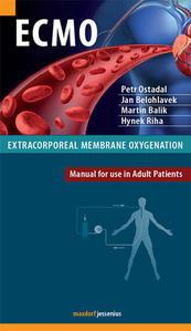 Obrázok ECMO Extracorporeal membrane oxygenation