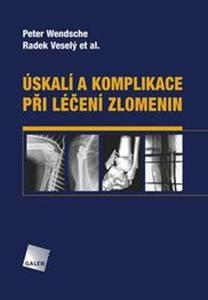 Obrázok Úskalí a komplikace při léčení zlomenin