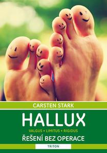 Obrázok Hallux Řešení bez operace