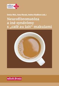 "Obrázok Neurofibromatóza a iné syndromy s ""café au lait"" makulami"