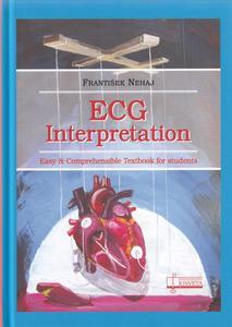 Obrázok ECG Interpretation