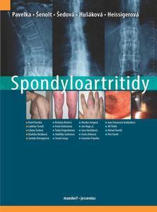 Obrázok Spondyloartritidy